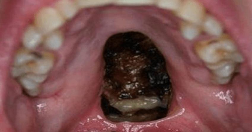 Dentista Fica Chocado Com O Que V 234 Dentro Da Boca De Um